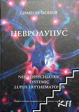 Невролупус