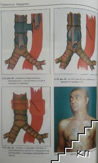 Торакална хирургия (Допълнителна снимка 2)