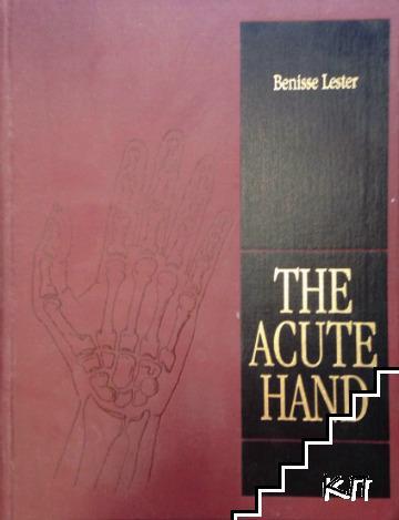 The Acute Hand