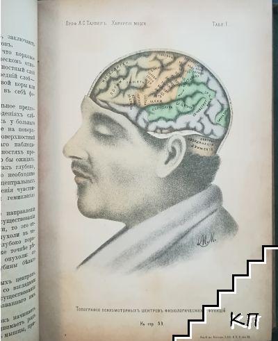 Хирургiя головного мозга (Допълнителна снимка 2)