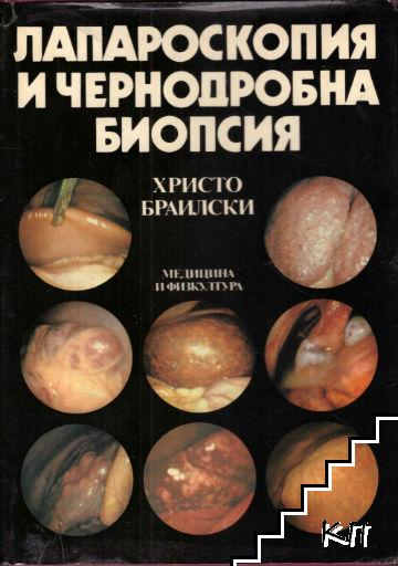 Лапароскопия и чернодробна биопсия