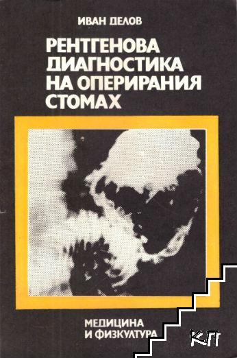 Рентгенова диагностика на оперирания стомах