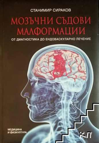 Мозъчни съдови малформации
