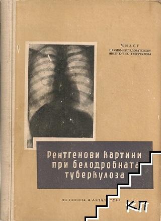 Рентгенови картини при белодробната туберкулоза