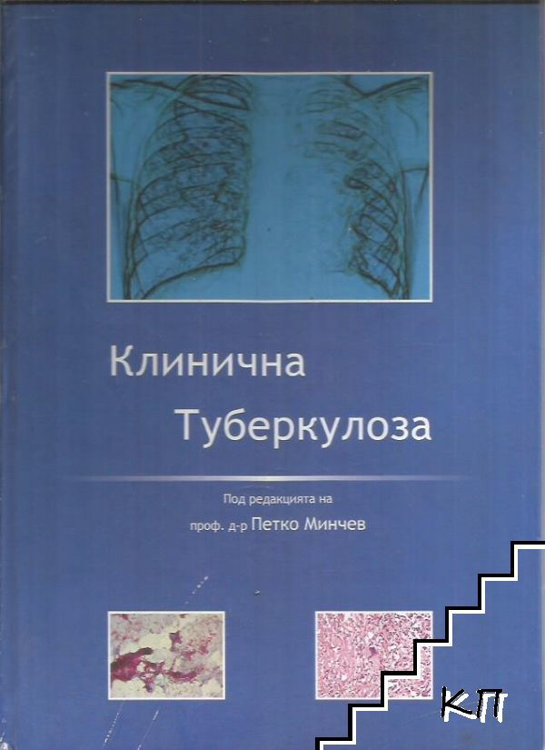 Клинична туберколоза