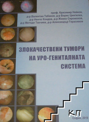 Злокачествени тумори на уро-гениталната система