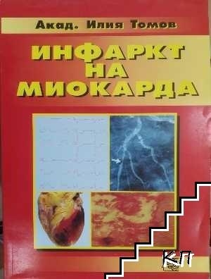 Инфаркт на миокарда