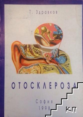 Отосклероза